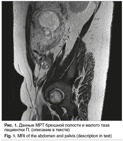 Рис. 1. Данные МРТ брюшной полости и малого таза пациентки П. (описание в тексте) Fig. 1. MRI of the abdomen and pelvis (description in text)