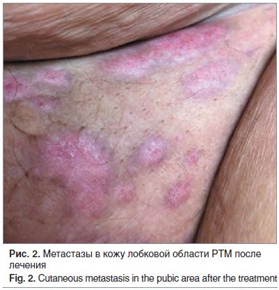 Рис. 2. Метастазы в кожу лобковой области РТМ после лечения Fig. 2. Cutaneous metastasis in the pubic area after the treatment