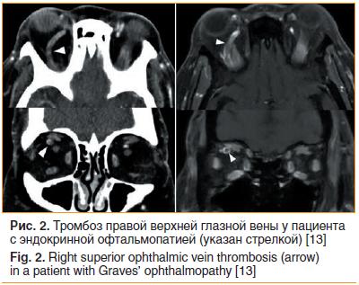 Рис. 2. Тромбоз правой верхней глазной вены у пациента с эндокринной офтальмопатией (указан стрелкой) [13]