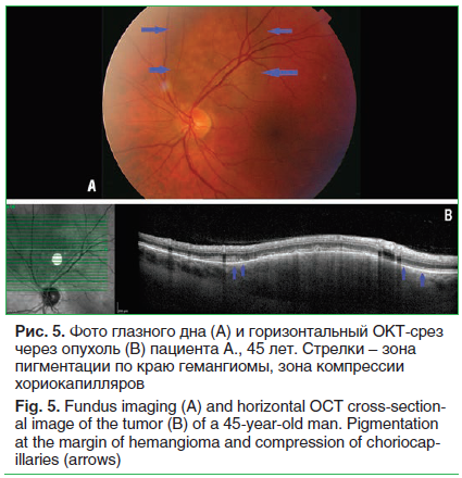 Рис. 5. Фото глазного дна (A) и горизонтальный ОКТ-срез через опухоль (B) пациента А., 45 лет. Стрелки – зона пигментации по краю гемангиомы, зона компрессии хориокапилляров Fig. 5. Fundus imaging (A) and horizontal OCT cross-sectional image of the tumor