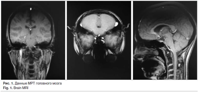 Рис. 1. Данные МРТ головного мозга Fig. 1. Brain MRI
