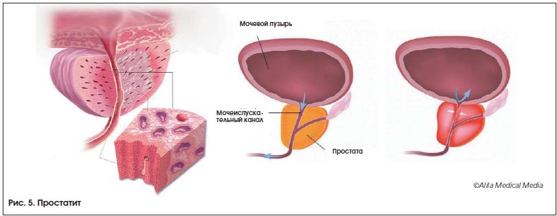 Цистит или хронический простатит гиперплазия простатиты