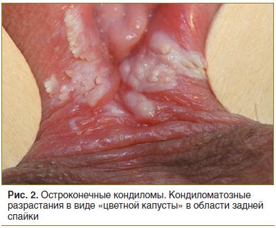 Mi a pénisz condyloma. A condyloma acuminatum tünetei, kezelése és megelőzése