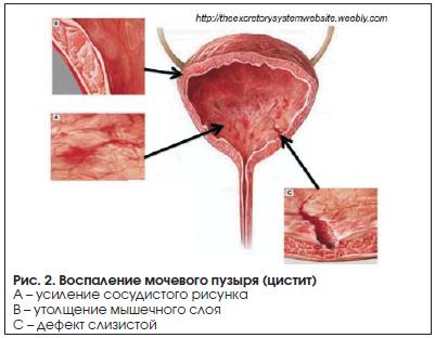 Рис. 2. Воспаление мочевого пузыря (цистит)