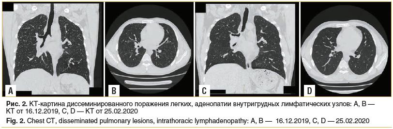 Рис. 2. КТ-картина диссеминированного поражения легких, аденопатии внутригрудных лимфатических узлов: A, B — КТ от 16.12.2019, C, D — КТ от 25.02.2020 Fig. 2. Chest CT, disseminated pulmonary lesions, intrathoracic lymphadenopathy: A, B — 16.12.2019, C, D