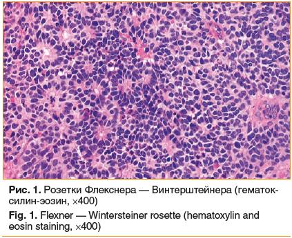 Рис. 1. Розетки Флекснера — Винтерштейнера (гематок- силин-эозин, ×400) Fig. 1. Flexner — Wintersteiner rosette (hematoxylin and eosin staining, ×400)