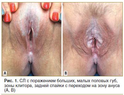 Рис. 1. СЛ с поражением больших, малых половых губ, зоны клитора, задней спайки с переходом на зону ануса (А, В)