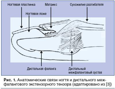 Рис. 1. Анатомические связи ногтя и дистального межфалангового экстензорного тензора (адаптировано из [3])