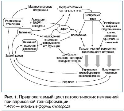 Рис. 1. Предполагаемый цикл патологических изменений при варикозной трансформации.