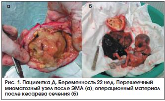 Рис. 1. Пациентка Д. Беременность 22 нед. Перешеечный миоматозный узел после ЭМА (а); операционный материал после кесарева сечения (б)