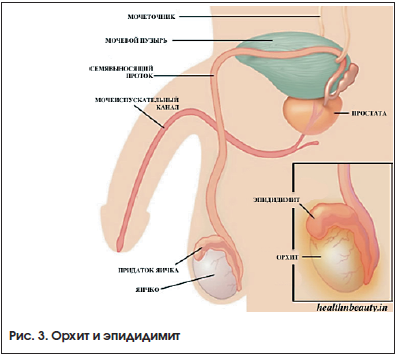 Рис. 3. Орхит и эпидидимит