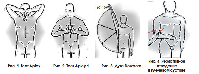 Ротация плечевого сустава кнаружи история болезни травматология санаторий для суставов ессентуки