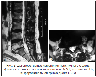 Рис. 2. Дегенеративные изменения поясничного отдела:а) склероз замыкательных пластин тел L5-S1, антелистез L5;б) фораминальная грыжа диска L5-S1
