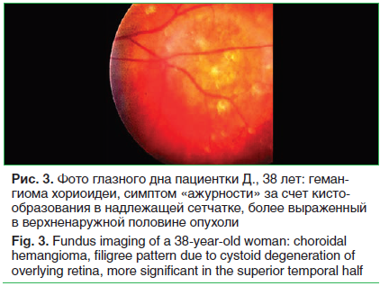 Рис. 3. Фото глазного дна пациентки Д., 38 лет: геман- гиома хориоидеи, симптом «ажурности» за счет кисто- образования в надлежащей сетчатке, более выраженный в верхненаружной половине опухоли Fig. 3. Fundus imaging of a 38-year-old woman: choroidal heman