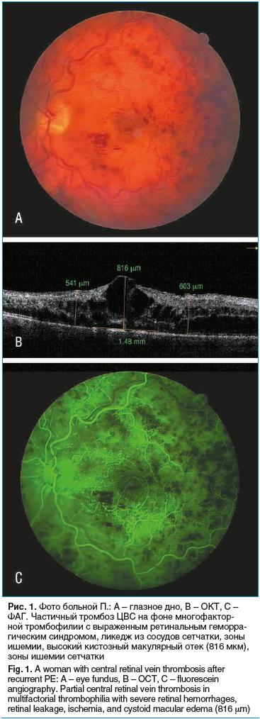Рис. 1. Фото больной П.: А – глазное дно, B – ОКТ, C – ФАГ. Частичный тромбоз ЦВС на фоне многофакторной тромбофилии с выраженным ретинальным геморрагическим синдромом, ликедж из сосудов сетчатки, зоны ишемии, высокий кистозный макулярный отек (816 мкм),