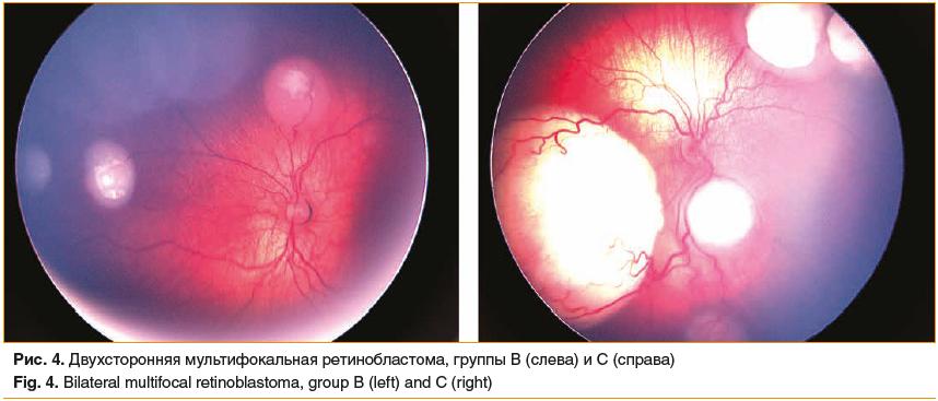 Рис. 4. Двухсторонняя мультифокальная ретинобластома, группы В (слева) и С (справа) Fig. 4. Bilateral multifocal retinoblastoma, group B (left) and C (right)
