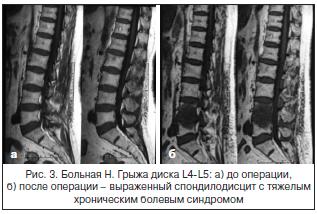 Рис. 3. Больная Н. Грыжа диска L4-L5: а) до операции,б) после операции – выраженный спондилодисцит с тяжелымхроническим болевым синдромом