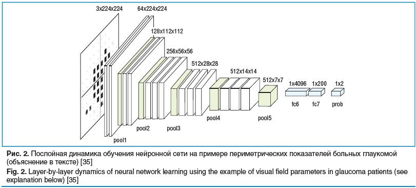 Рис. 2. Послойная динамика обучения нейронной сети на примере периметрических показателей больных глаукомой (объяснение в тексте) [35]