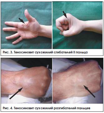 Диагностика и лечение теносиновитов кисти и предплечья | Коршунов ...