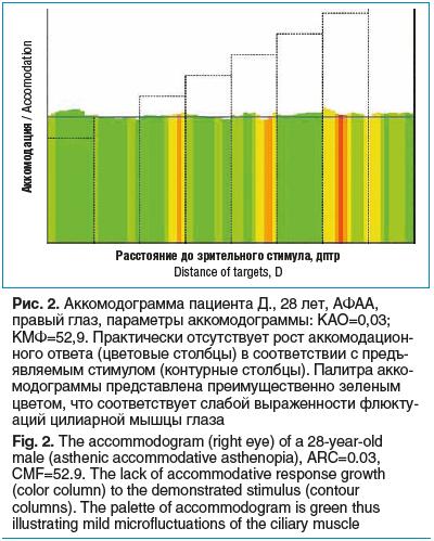 Рис. 2. Аккомодограмма пациента Д., 28 лет, АФАА, правый глаз, параметры аккомодограммы: КАО=0,03; КМФ=52,9. Практически отсутствует рост аккомодацион- ного ответа (цветовые столбцы) в соответствии с предъ- являемым стимулом (контурные столбцы). Палитра а