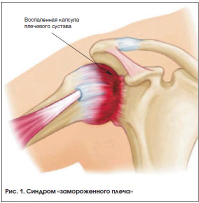 Артроскопическая патология плечевого сустава замороженное плечо лфк суставов рук при остеоартрите