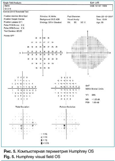 Рис. 5. Компьютерная периметрия Humphrey OS