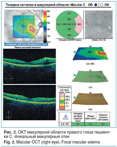 Рис. 1. ОКТ макулярной области правого глаза пациентки С. Фокальный макулярный отек