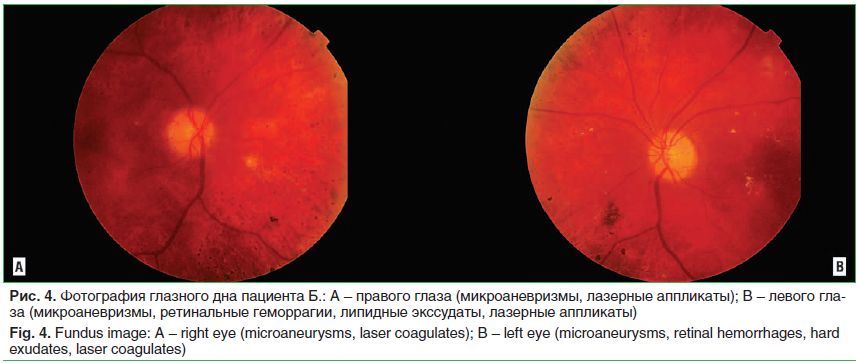 Рис. 4. Фотография глазного дна пациента Б.: A – правого глаза (микроаневризмы, лазерные аппликаты); B – левого гла- за (микроаневризмы, ретинальные геморрагии, липидные экссудаты, лазерные аппликаты) Fig. 4. Fundus image: A – right eye (microaneurysms, l
