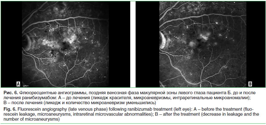 Рис. 6. Флюоресцентные ангиограммы, поздняя венозная фаза макулярной зоны левого глаза пациента Б. до и после лечения ранибизумабом: A – до лечения (ликедж красителя, микроаневризмы, интраретинальные микроаномалии); B – после лечения (ликедж и количество