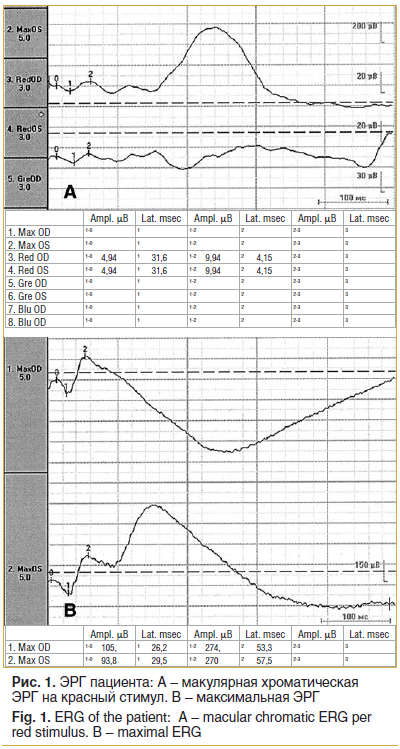 Рис. 1. ЭРГ пациента: А – макулярная хроматическая ЭРГ на красный стимул. В – максимальная ЭРГ Fig. 1. ERG of the patient: A – macular chromatic ERG per red stimulus. B – maximal ERG