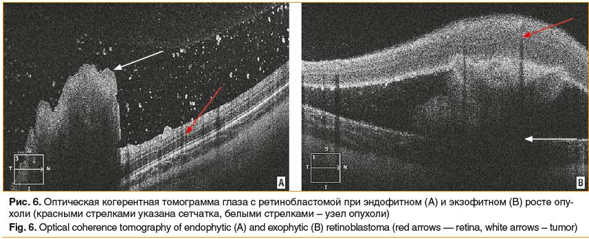 Рис. 6. Оптическая когерентная томограмма глаза с ретинобластомой при эндофитном (А) и экзофитном (В) росте опу- холи (красными стрелками указана сетчатка, белыми стрелками – узел опухоли) Fig. 6. Optical coherence tomography of endophytic (A) and exophyt