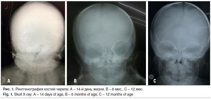 Рис. 1. Рентгенография костей черепа: A – 14-й день жизни, B – 6 мес., C – 12 мес. Fig. 1. Skull X-ray: A – 14 days of age, B – 6 months of age, C – 12 months of age