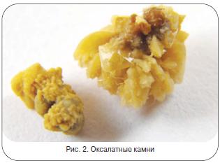 Рис. 2. Оксалатные камни