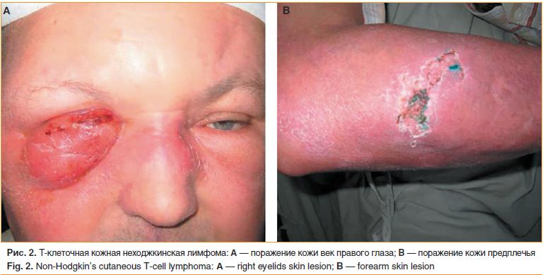 Рис. 2. Т-клеточная кожная неходжкинская лимфома: A — поражение кожи век правого глаза; B — поражение кожи предплечья