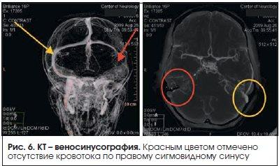 Рис. 6. КТ – веносинусография.