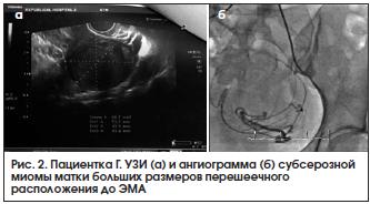 Рис. 2. Пациентка Г. УЗИ (а) и ангиограмма (б) субсерозной миомы матки больших размеров перешеечного расположения до ЭМА