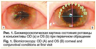 Рис. 1. Биомикроскопическая картина состояния роговицы и конъюнктивы OD (a) и OS (b) при первичном обращении Fig. 1. Biomicroscopy: OD (A) and OS (B) corneal and conjunctival conditions at first visit