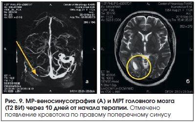 Рис. 9. МР-веносинусография (А) и МРТ головного мозга (Т2 ВИ) через 10 дней от начала терапии.
