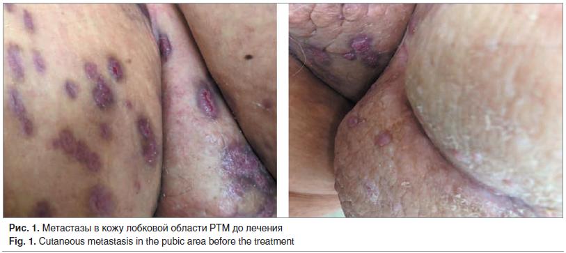 Рис. 1. Метастазы в кожу лобковой области РТМ до лечения Fig. 1. Cutaneous metastasis in the pubic area before the treatment
