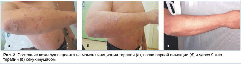 Рис. 3. Состояние кожи рук пациента на момент инициации терапии (а), после первой инъекции (б) и через 9 мес. терапии (в) секукинумабом