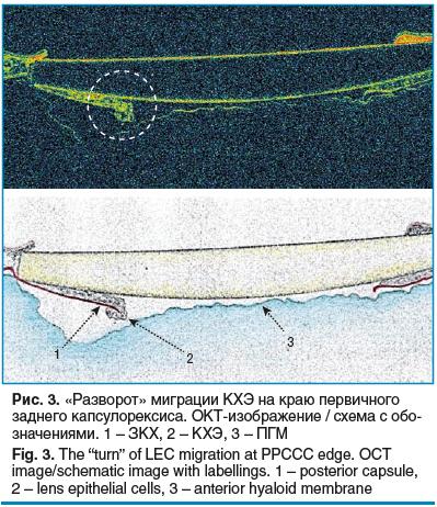 Рис. 3. «Разворот» миграции КХЭ на краю первичного заднего капсулорексиса. ОКТизображение / схема с обозначениями. 1 – ЗКХ, 2 – КХЭ, 3 – ПГМ