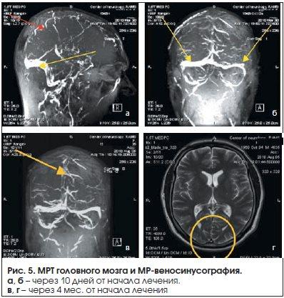Рис. 5. МРТ головного мозга и МР-веносинусография.
