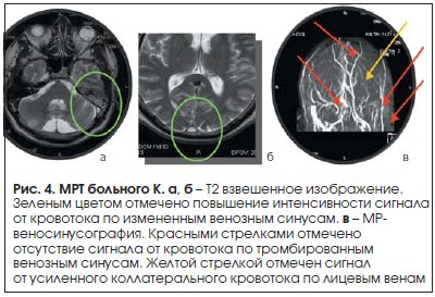 Рис. 4. МРТ больного К.