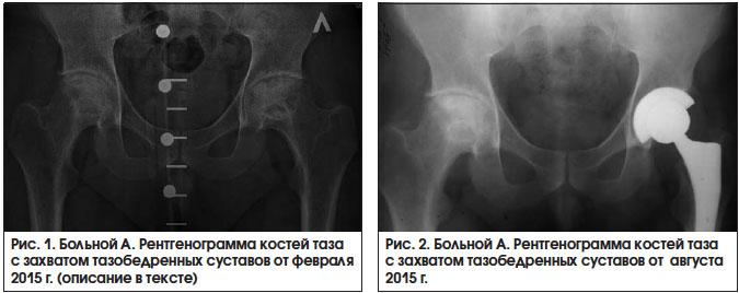 Медицинские препараты для лечения остеонекроза коленного сустава магнитолазерная терапия заболеваний суставов и позвоночника.м, 2011 буйлин в.а