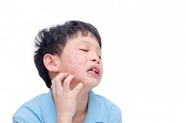 Особенности клинической картины и течения острых аллергических реакций (крапивницы и отека Квинке) у детей