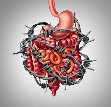 Синдром раздраженного кишечника — взгляд врача-хирурга
